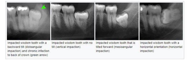 Wisdom Teeth Removal Process