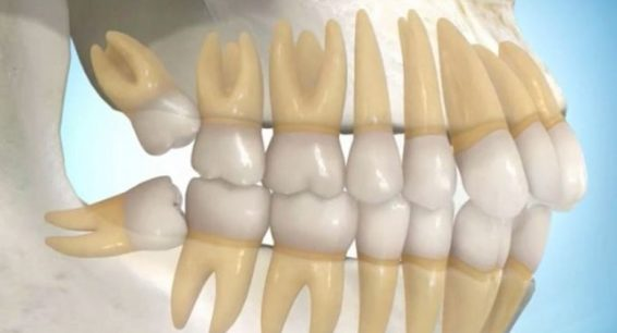 Wisdom Teeth Removal Houston