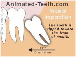 Mesioangular Wisdom tooth removal Houston