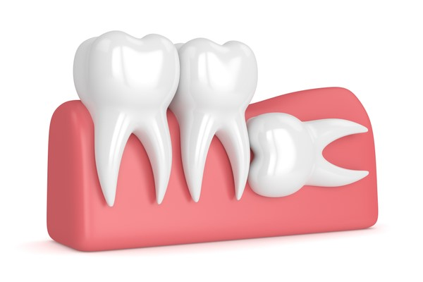 wisdom teeth removal sugar land, tx