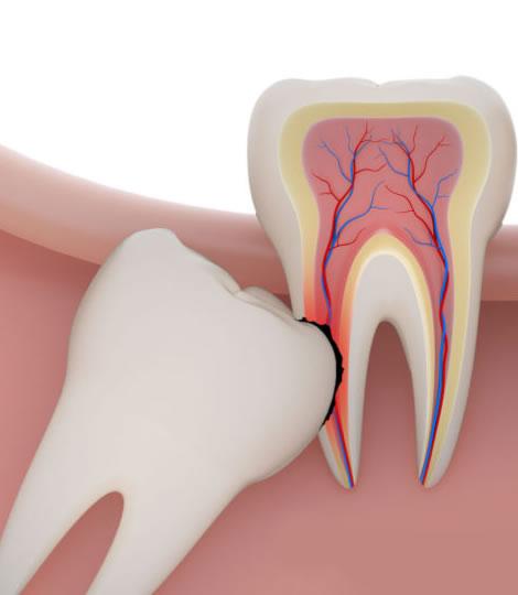 affordable wisdom teeth removal sugar land tx