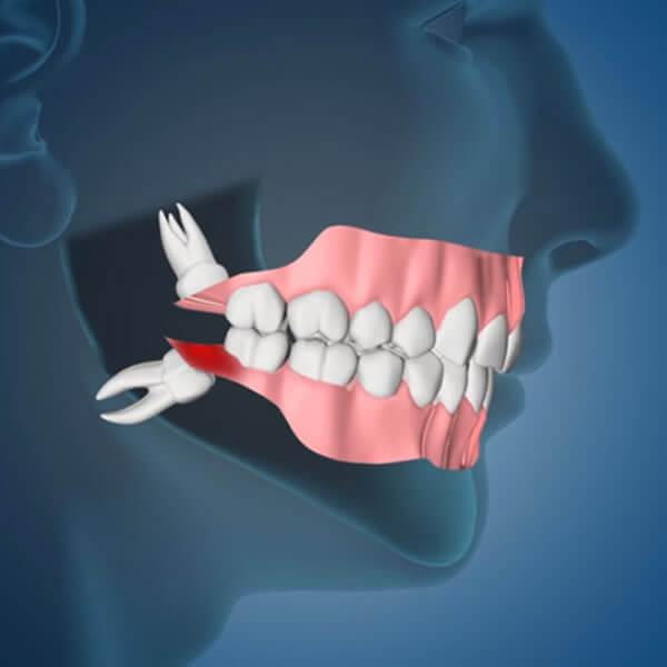 Wisdom Teeth Removal Katy, TX