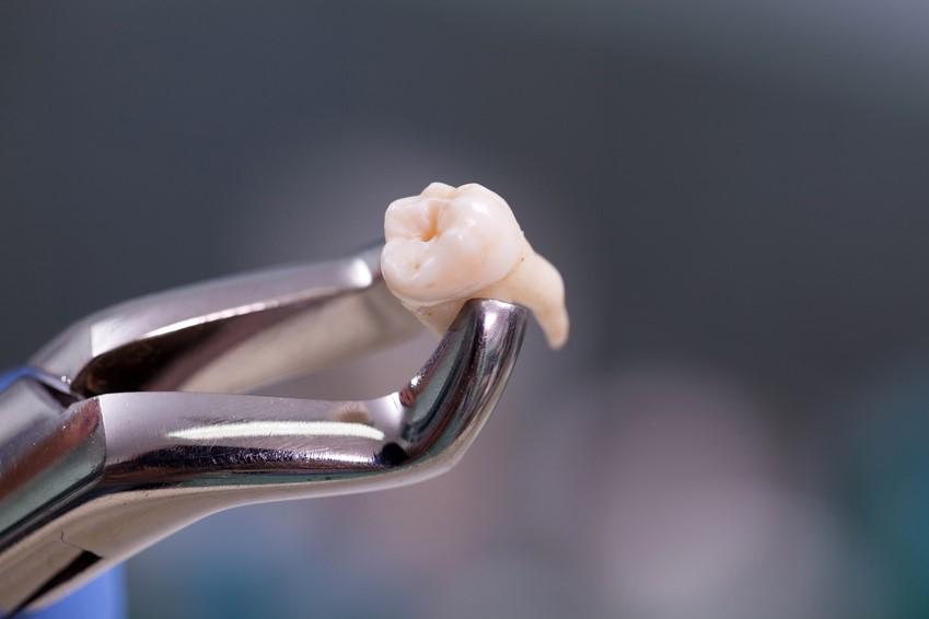 wisdom teeth removal katy tx