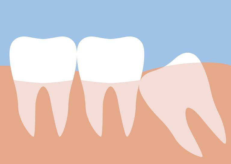 wisdom teeth removal rosenberg, tx