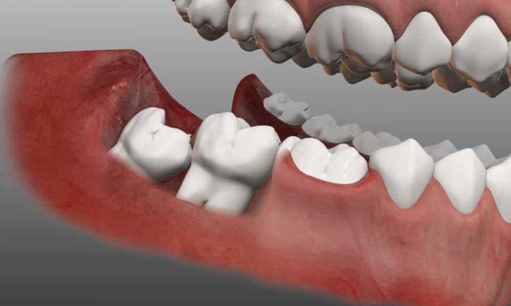 wisdom teeth extraction rosenberg, tx