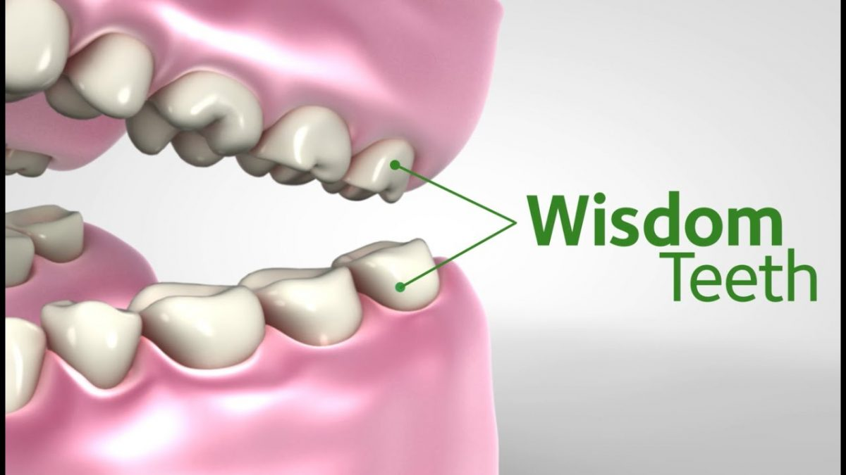 wisdom teeth removal the woodlands tx