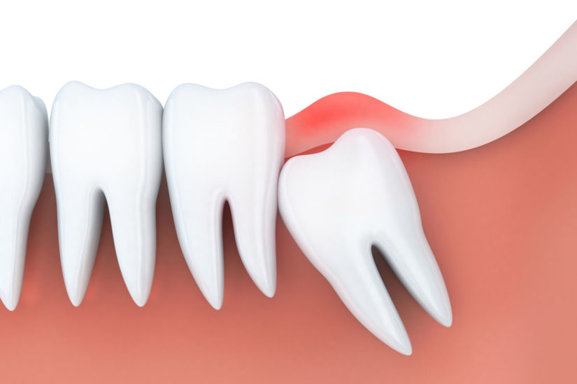 wisdom teeth extractions woodlands tx